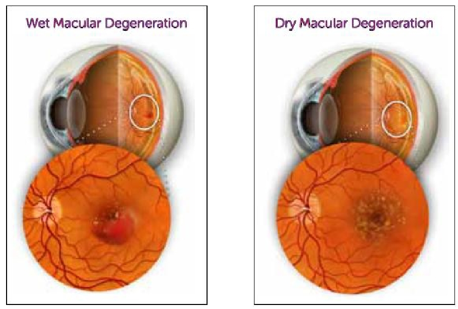 Wet and Dry Macular Degeneration