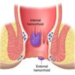 Progression of hemorrhoids