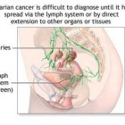 Ovarian Cancer Prognosis