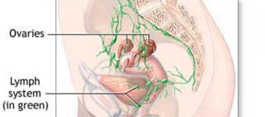 Ovarian Cancer Prognosis